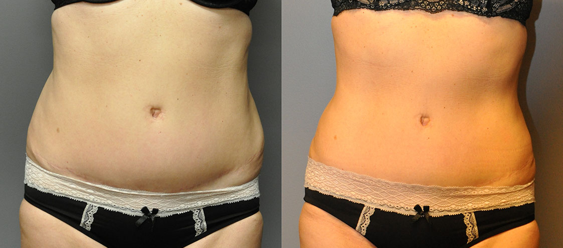 Ultrasonic Liposuction - Back and Waist