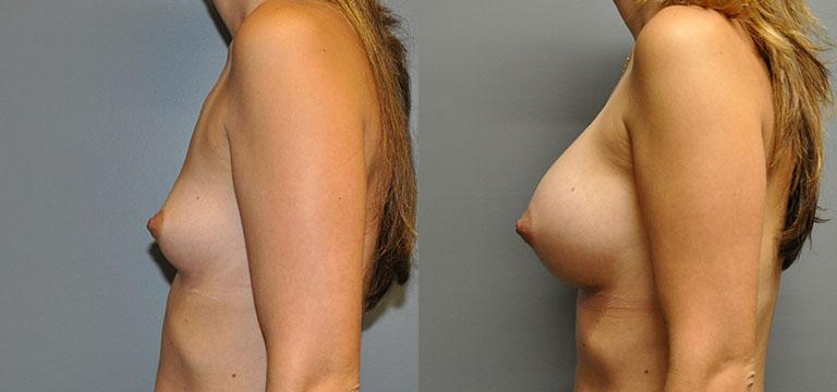 Breast-Augmentation 11