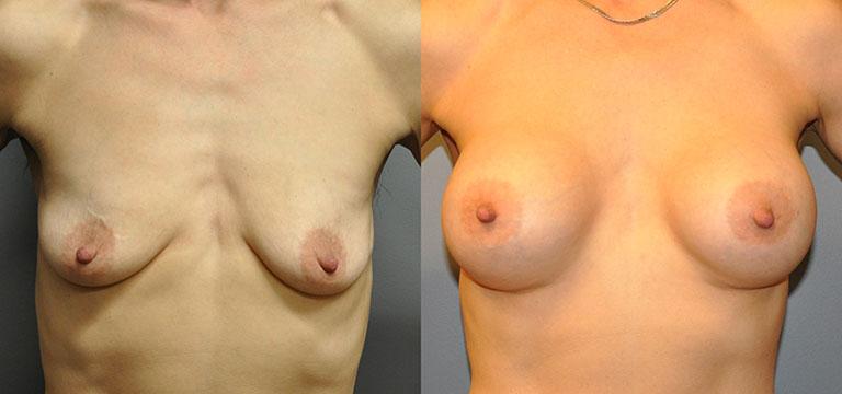 Breast-Augmentation 12