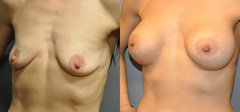 Breast-Augmentation 13