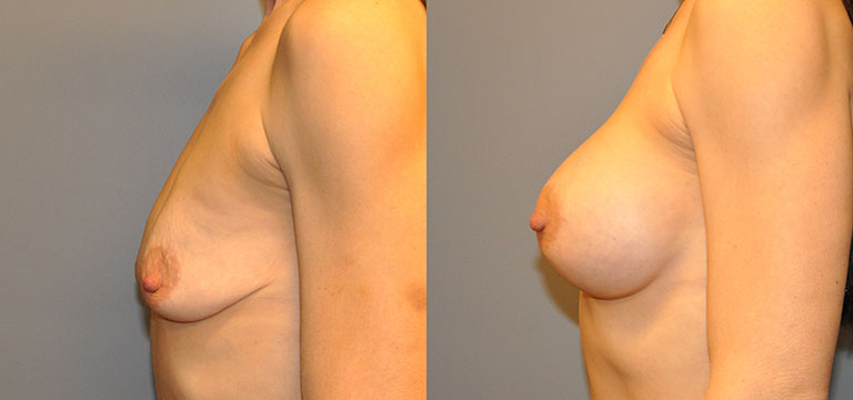 Breast-Augmentation 14