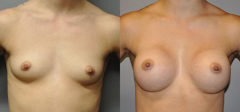 Breast-Augmentation 15
