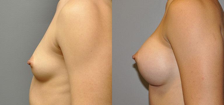 Breast-Augmentation 17