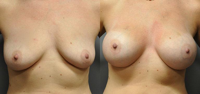Breast-Augmentation 18