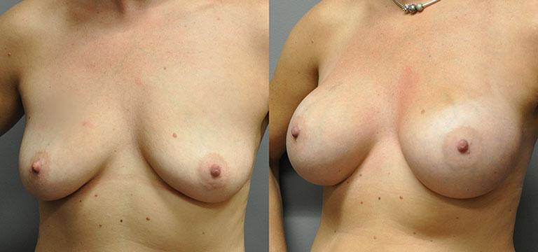 Breast-Augmentation 19