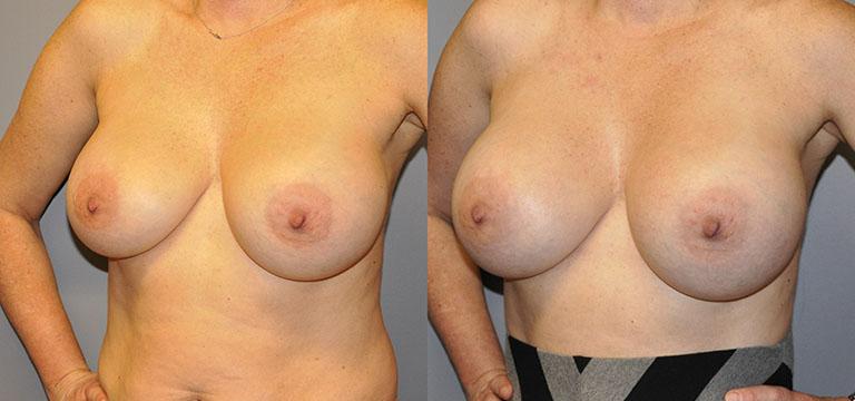 Breast-Augmentation 21