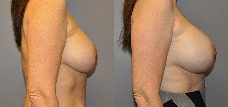 Breast-Augmentation 22