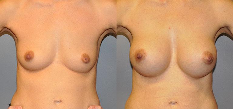 Breast-Augmentation 23