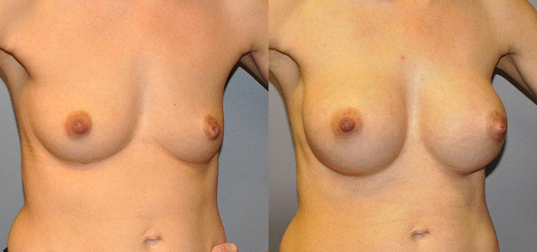 Breast-Augmentation 24