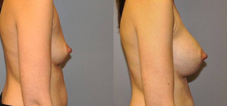Breast-Augmentation 25