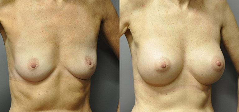 Breast-Augmentation 28