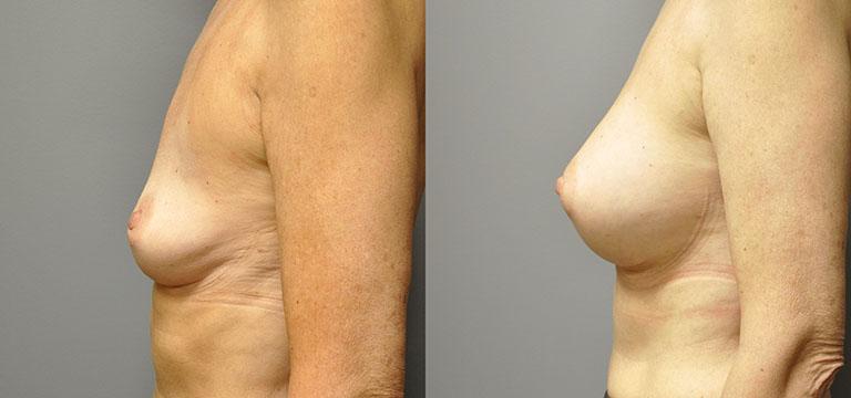 Breast-Augmentation 29