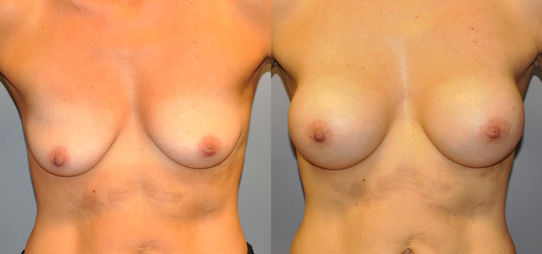 Breast-Augmentation 30