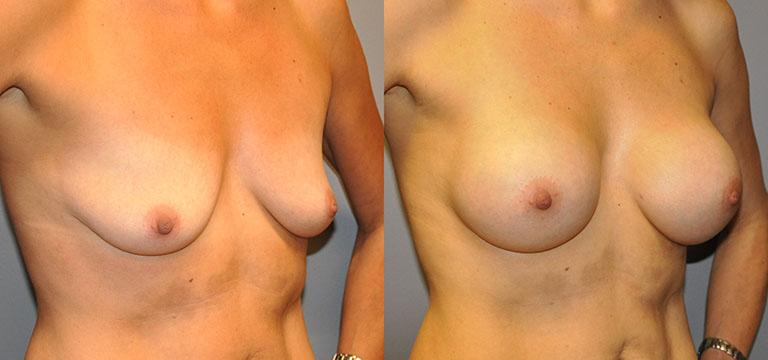 Breast-Augmentation 31