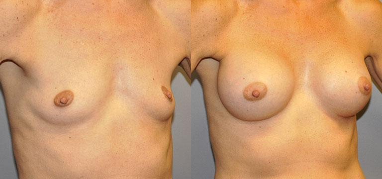 Breast-Augmentation 33