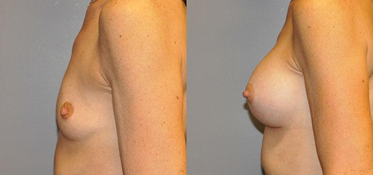 Breast-Augmentation 34
