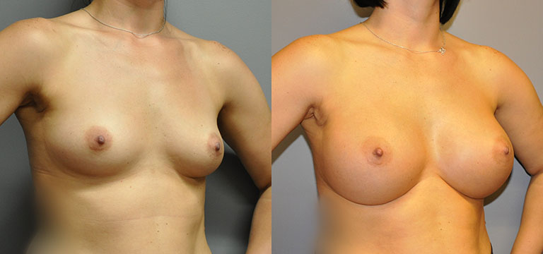Breast-Augmentation 35