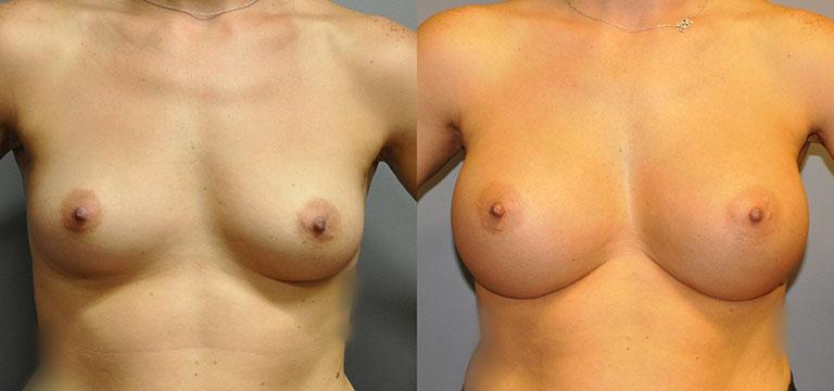 Breast-Augmentation 37