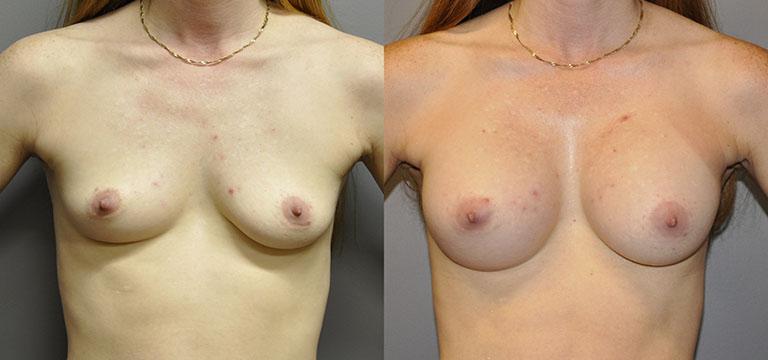 Breast-Augmentation 38