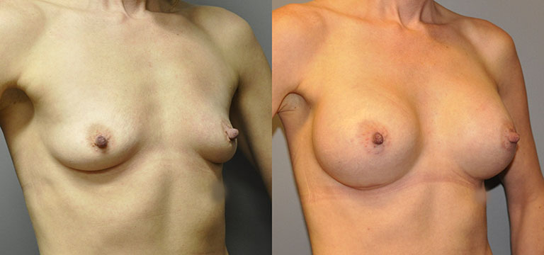 Breast-Augmentation 41