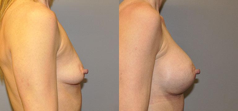 Breast-Augmentation 42