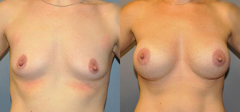 Breast-Augmentation 43