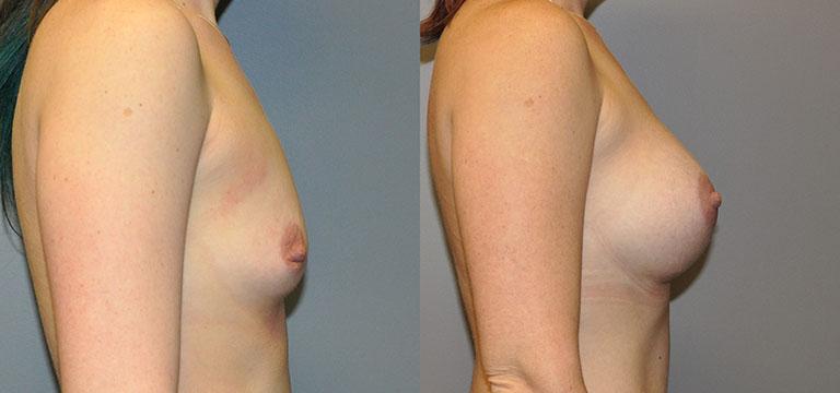 Breast-Augmentation 45