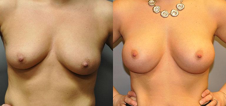 Breast-Augmentation 47
