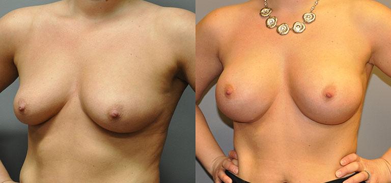 Breast-Augmentation 48
