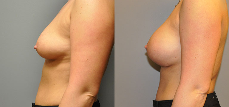 Breast-Augmentation 49