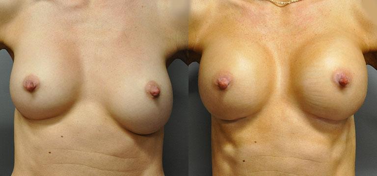 Breast-Augmentation 50
