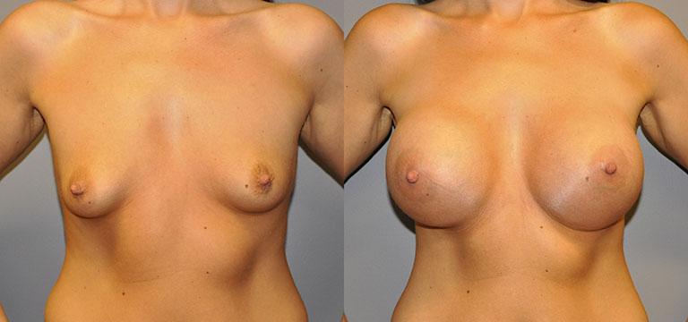 Breast-Augmentation 52