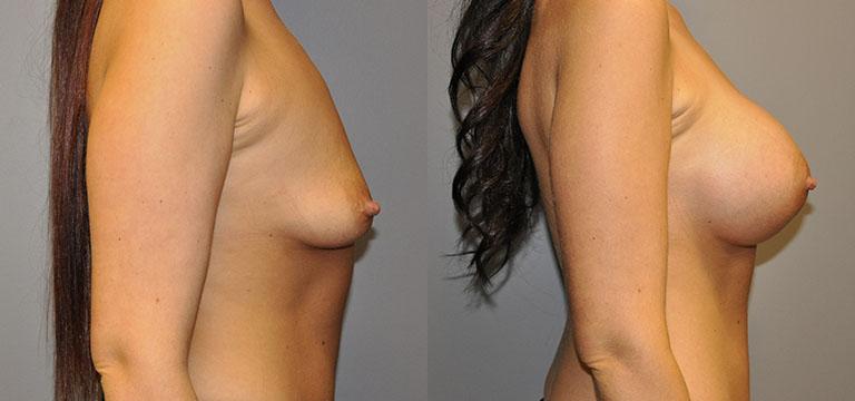 Breast-Augmentation 53