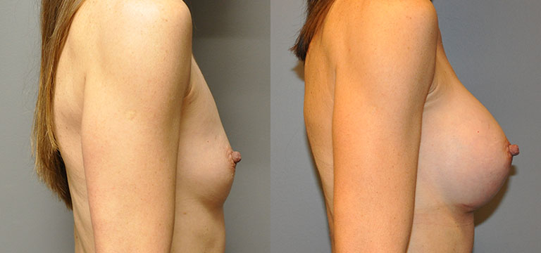 Breast-Augmentation 7