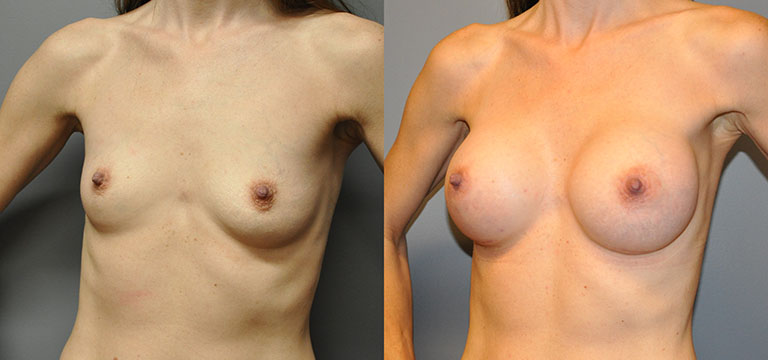 Breast-Augmentation 8