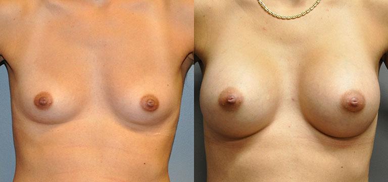 Breast-Augmentation 9