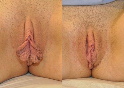 Labiaplasty w Clitoral Hood Reduction ID 2328301
