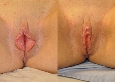 Labiaplasty w Clitoral Hood Reduction ID 2355597