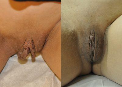 Labiaplasty w Clitoral Hood Reduction ID 2357086