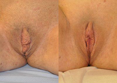 Labiaplasty w Clitoral Hood Reduction ID 2360903
