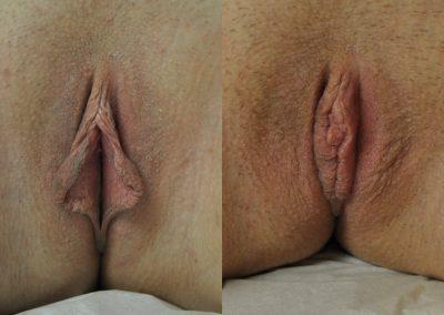 Labiaplasty w Clitoral Hood Reduction ID 2361632